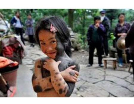 ילדה סינית נולדה עם פרווה על יותר מ-60% מגופה