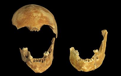 שרידי גולגולת שנמצאה בבאר העתיקה (צילום: קלרה עמית, רשות העתיקות)