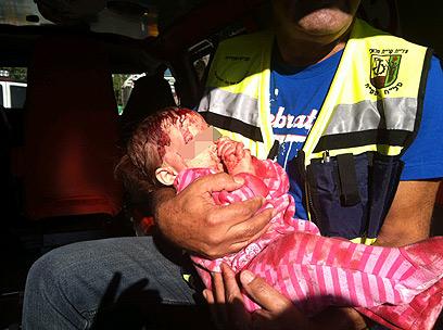 שני תינוקות נפצעו קל במתקפה על קריית מלאכי (צילום: גדעון רחמים)