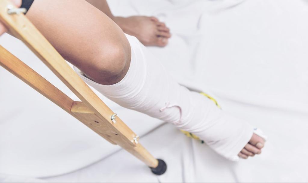 שברה את הרגל, אך החברה סרבה לפצותה. אילוסטרציה (צילום: shutterstock)